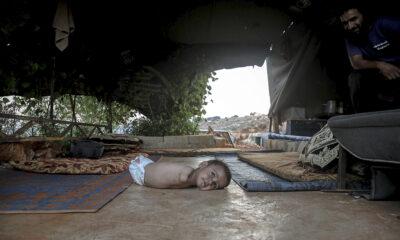 Uzuvları olmayan Muhammed bebek tutunacak bir hayat arıyor